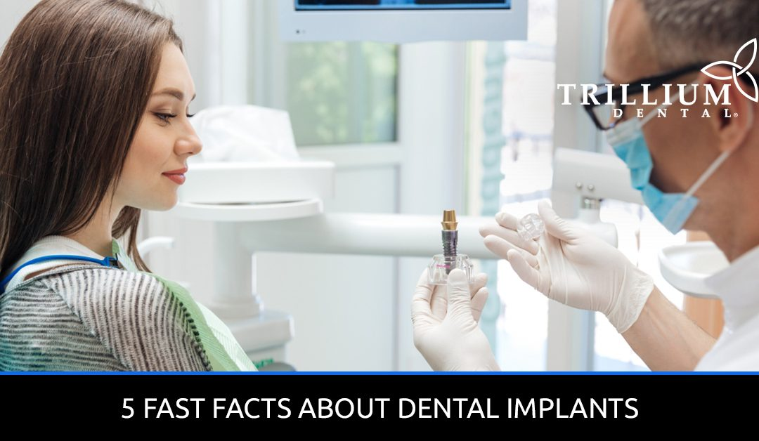 5 FAST FACTS ABOUT DENTAL IMPLANTS
