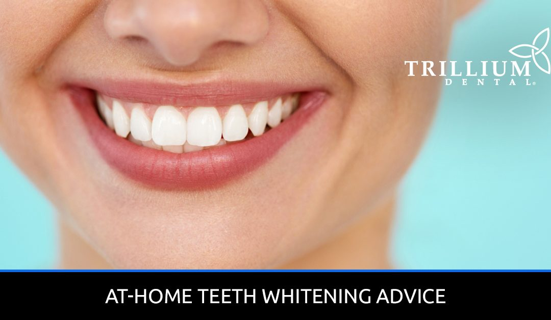 At-Home-Teeth-Whitening-Advice